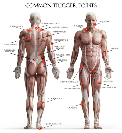 common trigger points